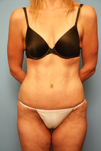 Tummy Tuck without muscle tightening after 259127