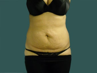 Tummy tuck before 561249