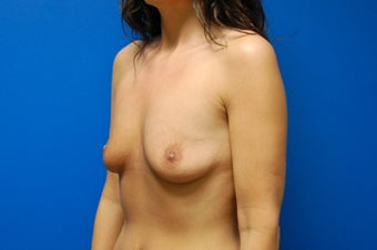 Breast augmentation 363867