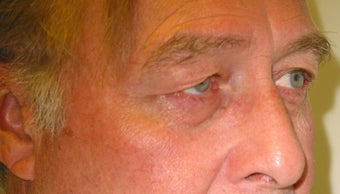 Upper Lid Blepharoplasty before 147717