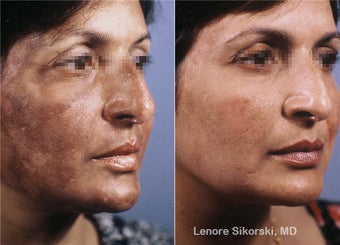 Hyperpigmentation Correction before 106303
