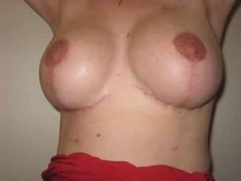 Breast Revision and Reconstruction Surgery after 139089