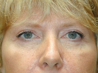 Bilateral Upper Blepharoplasty and Lower Lid Pinch after 425056