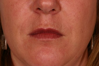 Restylane treatment before 88696