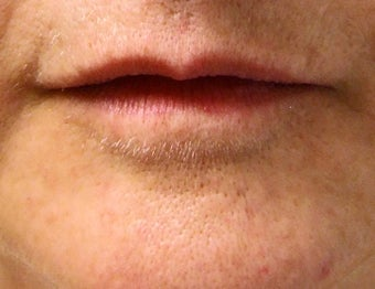 Lip Augmentation before 113328