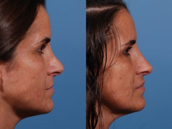 Revision rhinoplasty after 435954