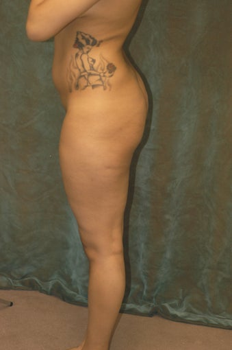 Women's Buttocks Augmentation before 518140