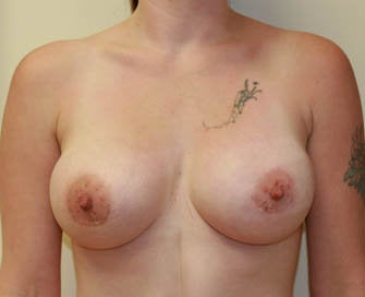Breast Augmentation & Scarless Breast Lift after 226468