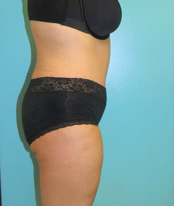 Tummy Tuck- Abdominoplasty after 381686