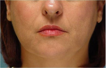Radiesse injection nasolabial folds and marionette lines after 255551