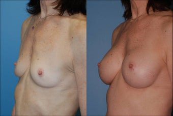 Breast Augmentation - Silicone after 127492