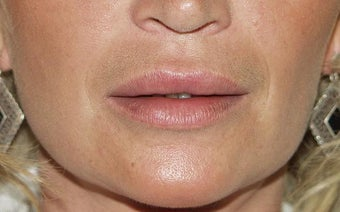 Lip Augmentation after 203774