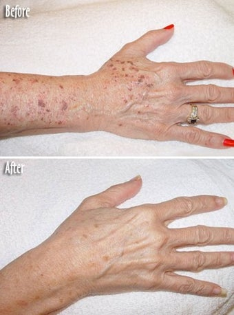 Age spots and sun damage IPL treatment before 6352