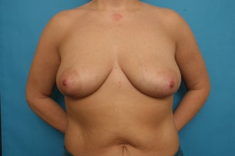 Bilateral Breast Augmentation with Breast Lift after Weight Loss before 375312