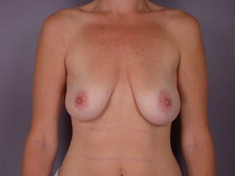 Breast lift with implants before 321667