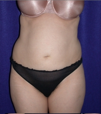 Tummy Tuck (abdominoplasty) before 208468