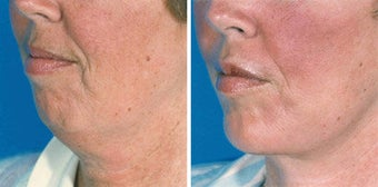Chin Implant before 642996