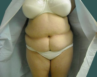 Extended abdominoplasty before 561153