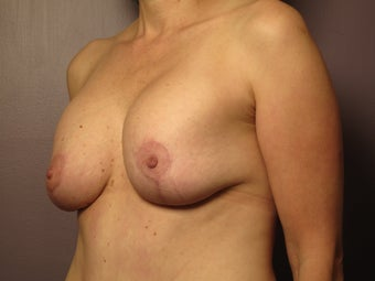 Breast Revision before 307217