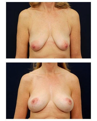Breast Augmentation with Lift before 374950