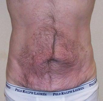 VASER Shape to Abdomen after 433039