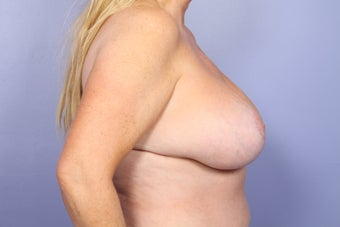 Breast lift with Implants after 302594