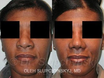 African American Rhinoplasty before 374017