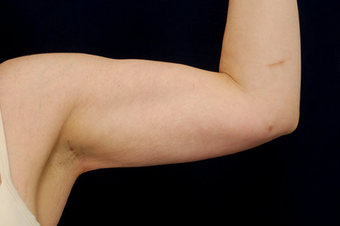Liposuction - Upper Arms after 393164