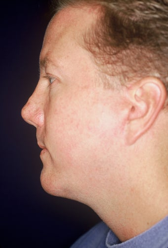 Chin Implant after 551169