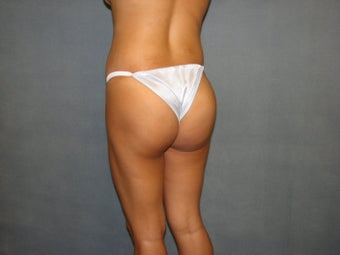 Brazilian Buttock Lift after 76687