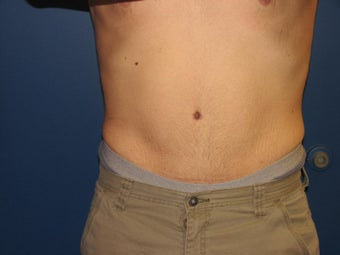 Male Tummy Tuck after 576569
