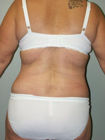 Belt Lipectomy 379797