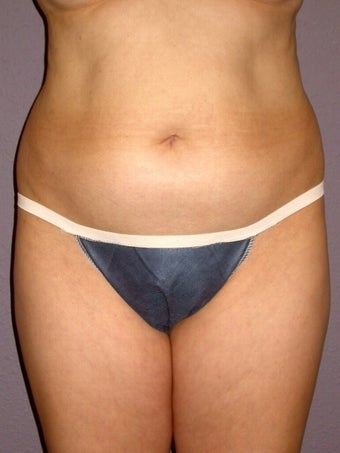 Liposuction before 313998