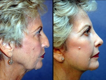 Rhinoplasty and Facial Rejvuenation before 81954