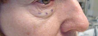 Lower eyelid and cheek lift before 429562