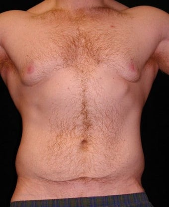 Male Tummy Tuck, Flank Liposuction, Male Breast Reduction before 550017