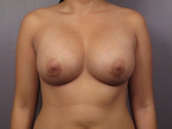 Breast Lift after 311084