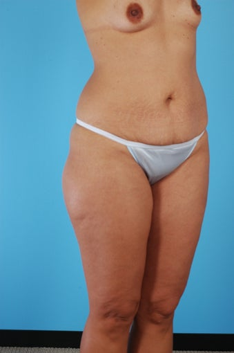 Tummy Tuck, Liposuction, Breast Augmentation before 458976