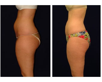 Liposuction before 286710