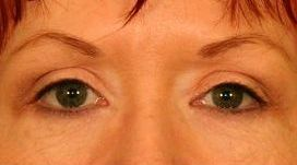 Upper Blepharoplasty (Upper Eyelids) after 376859