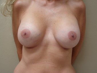 Silicone Breast Augmentation High Profile smooth round 375 cc after 339365
