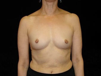 Bilateral Breast Augmentation with Silicone Implants: R-400cc L-450cc