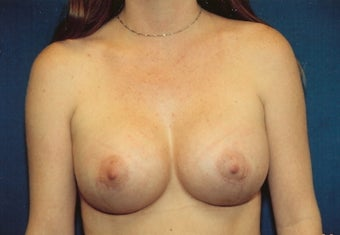 Breast Augmentation after 266782