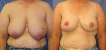 Breast Reconstruction before 73810