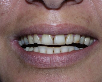 Crowns, Implants and Veneers before 345523