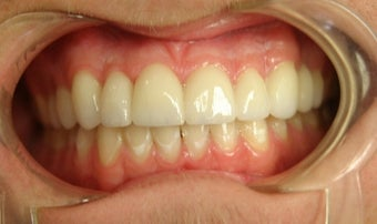 porcelain bridge with veneers replacing teeth 466255