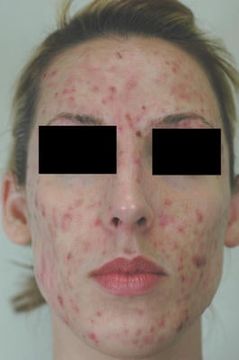 Laser Acne Treatment before 82990