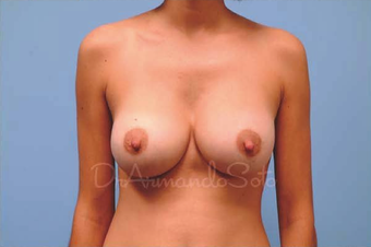 Before and After Silicone Gel Breast Augmentation after 122906