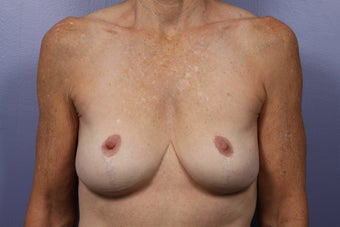 Breast Lift / Breast Augmentation  before 291088