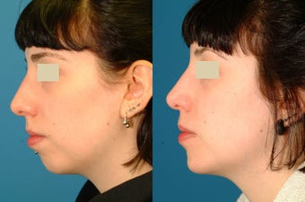 Chin Implant before 117340